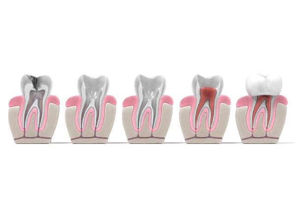 endodoncia-interior-clinica-dental-metrisalud-mentrida