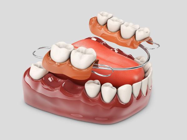 protesis-parcial-clinica-dental-metrisalud-mentrida